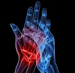 Magnet Therapy for Rheumatoid Arthritis