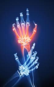 Post image for The Major Kinds of Arthritis